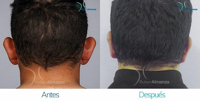 antes-y-despues-otoplastia-ruber-almanza-bogota-colombia-cs-posterior