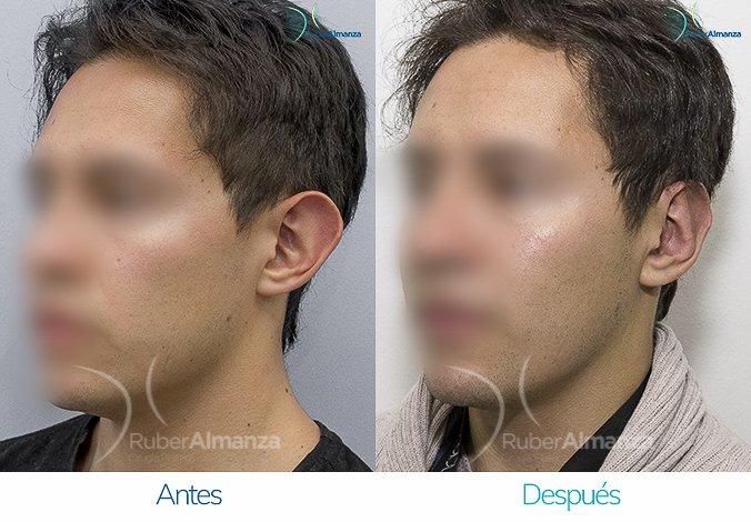 antes-y-despues-otoplastia-ruber-almanza-bogota-colombia-dfs-diagonal-izquierdo