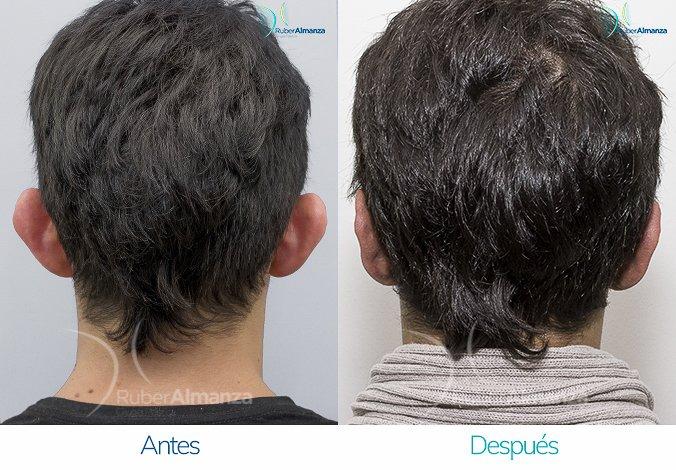 antes-y-despues-otoplastia-ruber-almanza-bogota-colombia-dfs-posterior