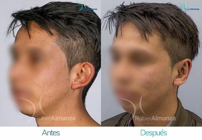 antes-y-despues-otoplastia-ruber-almanza-bogota-colombia-ea-diagonal-izquierdo