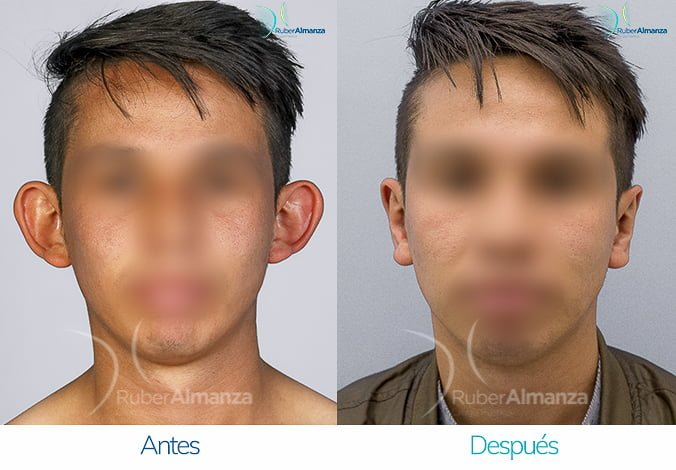 antes-y-despues-otoplastia-ruber-almanza-bogota-colombia-ea-frontal