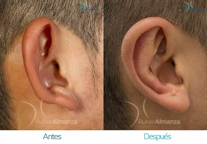 antes-y-despues-otoplastia-ruber-almanza-bogota-colombia-ea-lateral-derecho