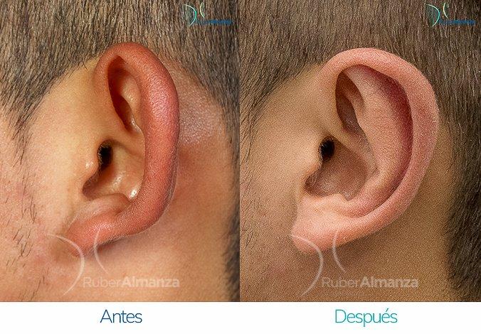 antes-y-despues-otoplastia-ruber-almanza-bogota-colombia-ea-lateral-izquierdo