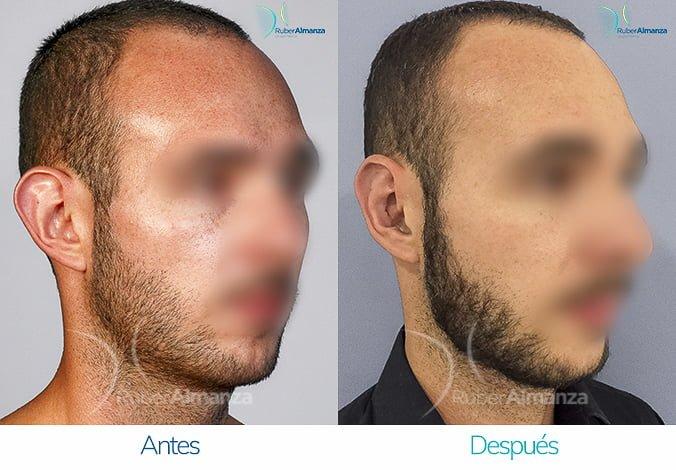 antes-y-despues-otoplastia-ruber-almanza-bogota-colombia-ec-diagonal-derecho