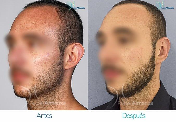 antes-y-despues-otoplastia-ruber-almanza-bogota-colombia-ec-diagonal-izquierdo
