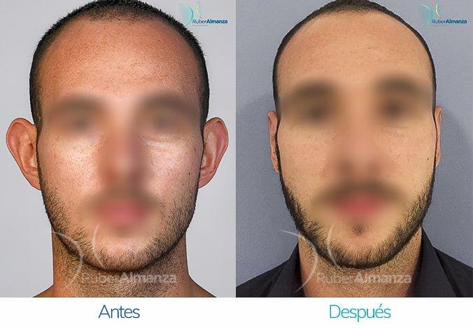 antes-y-despues-otoplastia-ruber-almanza-bogota-colombia-ec-frontal