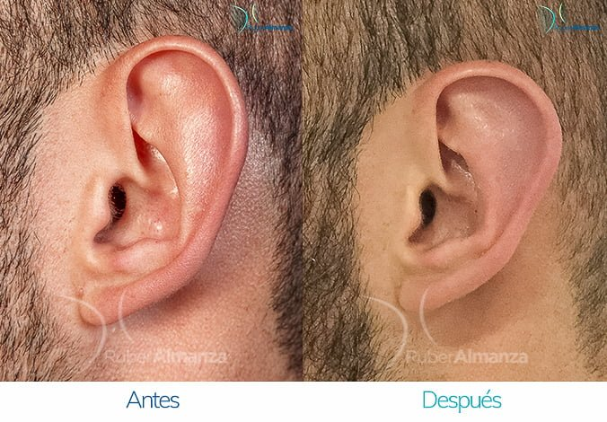 antes-y-despues-otoplastia-ruber-almanza-bogota-colombia-ec-lateral-derecho