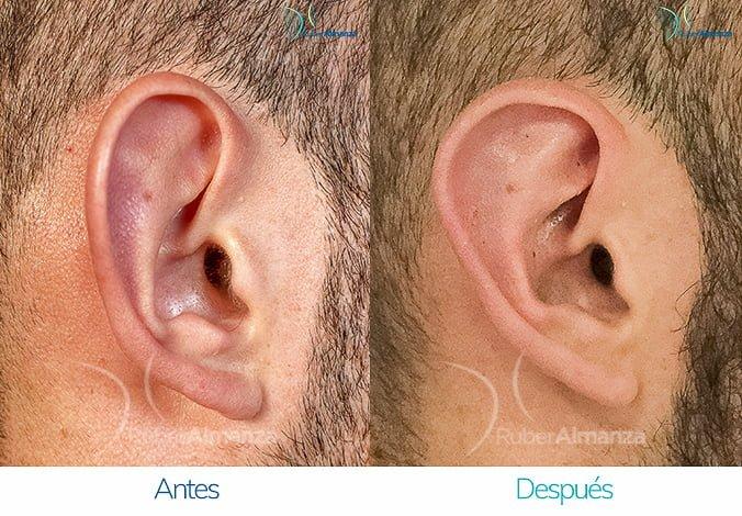 antes-y-despues-otoplastia-ruber-almanza-bogota-colombia-ec-lateral-izquierdo