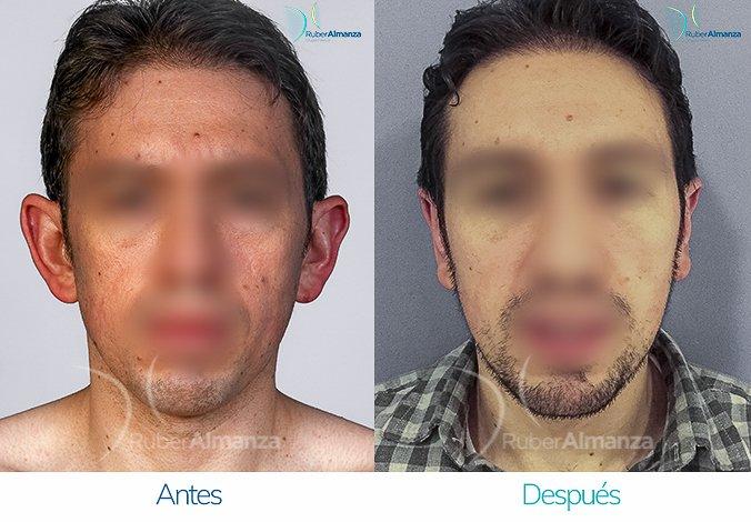 antes-y-despues-otoplastia-ruber-almanza-bogota-colombia-frontal