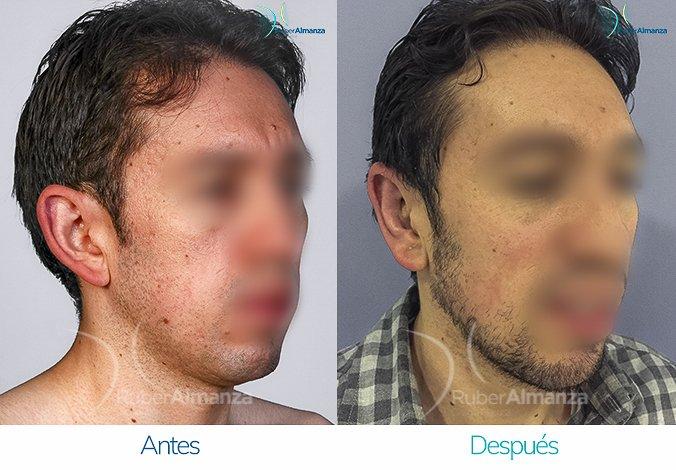 antes-y-despues-otoplastia-ruber-almanza-bogota-colombia-hc-diagonal-derecho