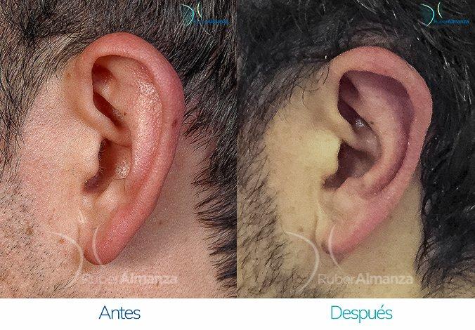 antes-y-despues-otoplastia-ruber-almanza-bogota-colombia-hc-lateral-derecho