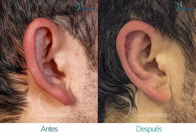 antes-y-despues-otoplastia-ruber-almanza-bogota-colombia-hc-lateral-izquierdo