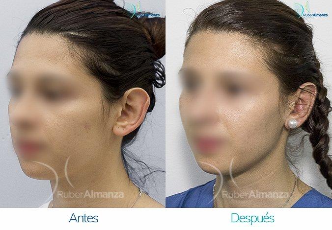 antes-y-despues-otoplastia-ruber-almanza-bogota-colombia-jc-diagonal-izquierdo