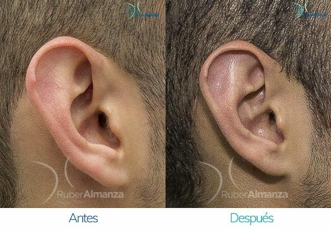 antes-y-despues-otoplastia-ruber-almanza-bogota-colombia-jcc-lateral-derecho