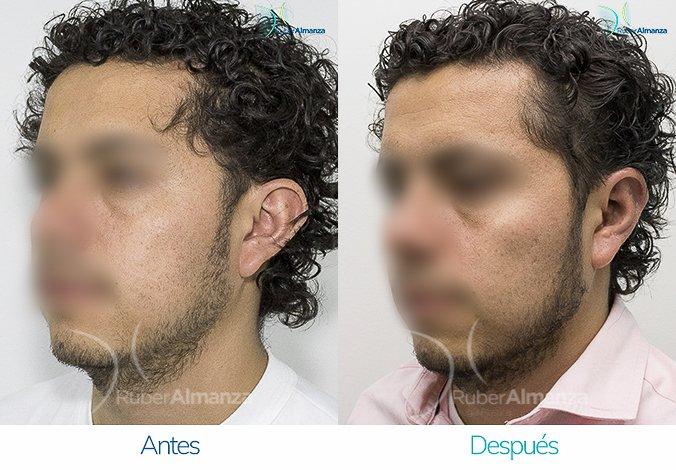 antes-y-despues-otoplastia-ruber-almanza-bogota-colombia-jg-diagonal-izquierdo