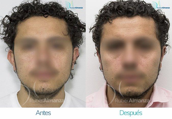 antes-y-despues-otoplastia-ruber-almanza-bogota-colombia-jg-frontal