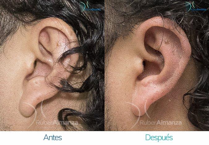 antes-y-despues-otoplastia-ruber-almanza-bogota-colombia-jg-lateral-izquierdo