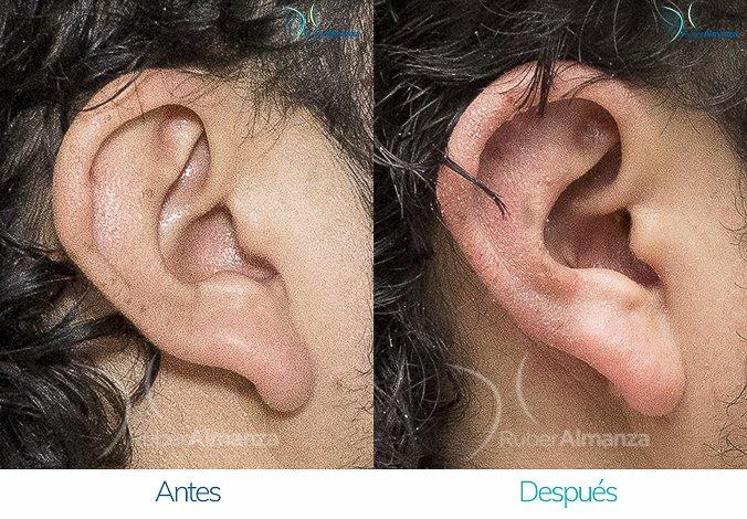 antes-y-despues-otoplastia-ruber-almanza-bogota-colombia-jg-lateral-derecho