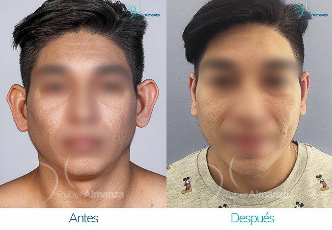antes-y-despues-otoplastia-ruber-almanza-bogota-colombia-kc-frontal