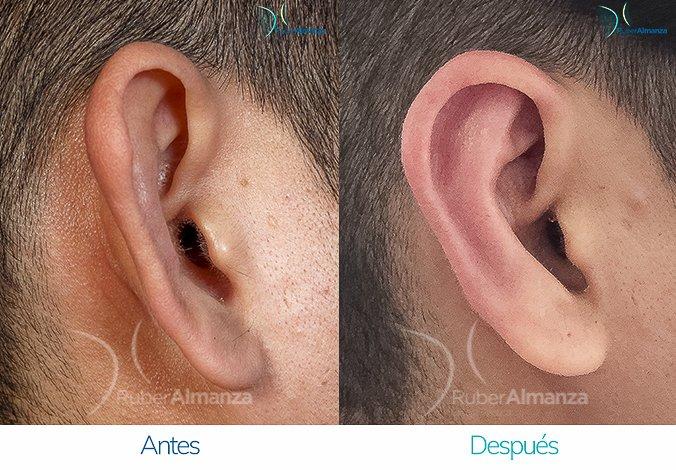 antes-y-despues-otoplastia-ruber-almanza-bogota-colombia-kc-lateral-derecho