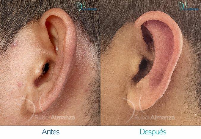 antes-y-despues-otoplastia-ruber-almanza-bogota-colombia-kc-lateral-izquierdo
