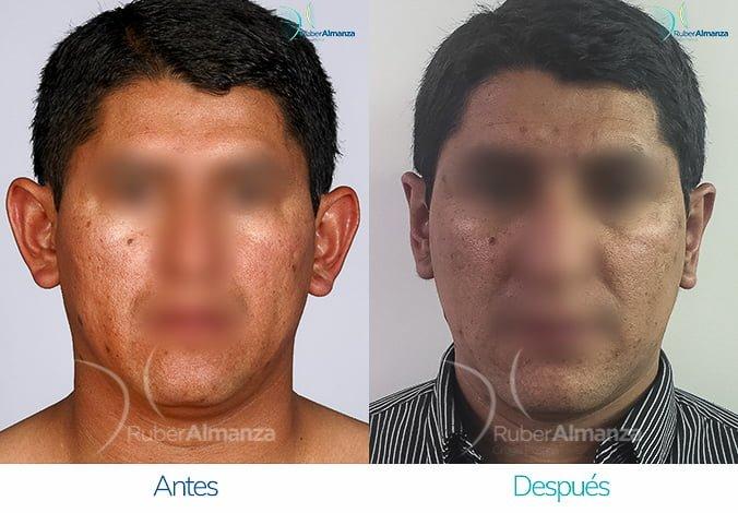 antes-y-despues-otoplastia-ruber-almanza-bogota-colombia-lac-frontal