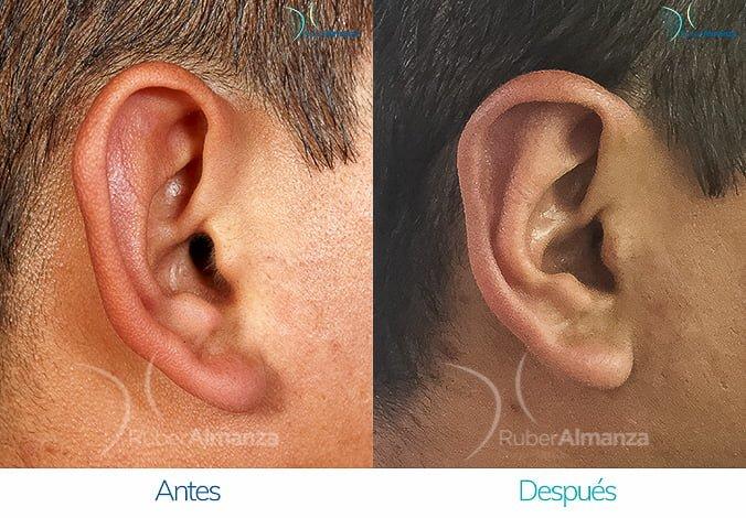 antes-y-despues-otoplastia-ruber-almanza-bogota-colombia-lac-perfill-derecho