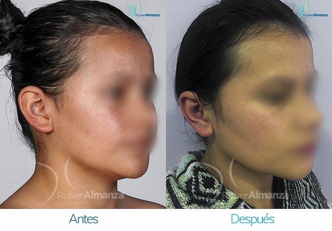 antes-y-despues-otoplastia-ruber-almanza-bogota-colombia-lg-diagonal-derecho