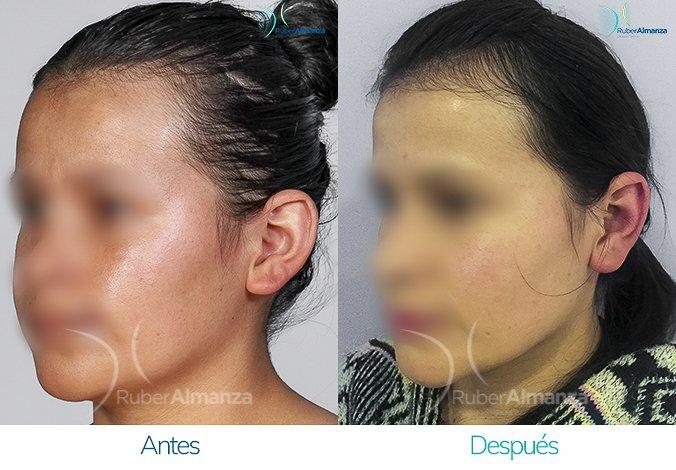 antes-y-despues-otoplastia-ruber-almanza-bogota-colombia-lg-diagonal-izquierdo