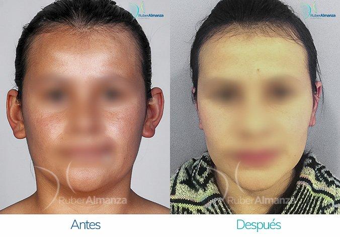 antes-y-despues-otoplastia-ruber-almanza-bogota-colombia-lg-frontal