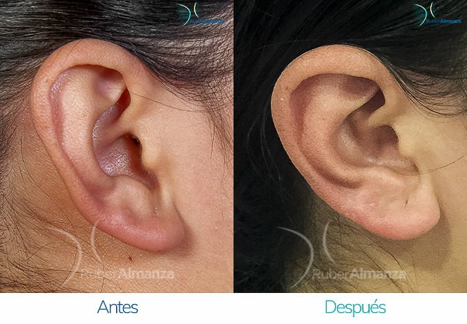 antes-y-despues-otoplastia-ruber-almanza-bogota-colombia-lg-perfill-derecho