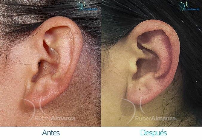 antes-y-despues-otoplastia-ruber-almanza-bogota-colombia-lg-perfill-izquierdo