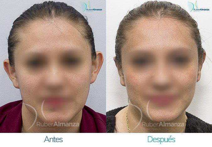 antes-y-despues-otoplastia-ruber-almanza-bogota-colombia-lv-frontal