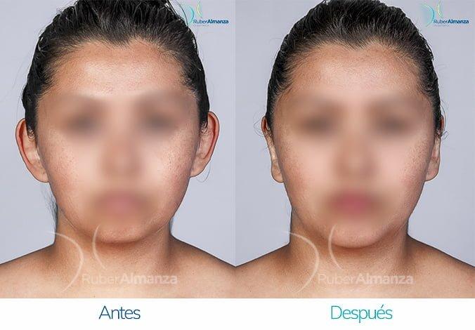 antes-y-despues-otoplastia-ruber-almanza-bogota-colombia-nc-diagonal-derecho