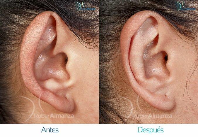 antes-y-despues-otoplastia-ruber-almanza-bogota-colombia-nc-lateral-derecho