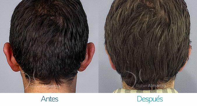 antes-y-despues-otoplastia-ruber-almanza-bogota-colombia-posterior