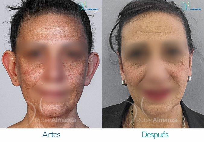 antes-y-despues-otoplastia-ruber-almanza-bogota-colombia-ro-frontal