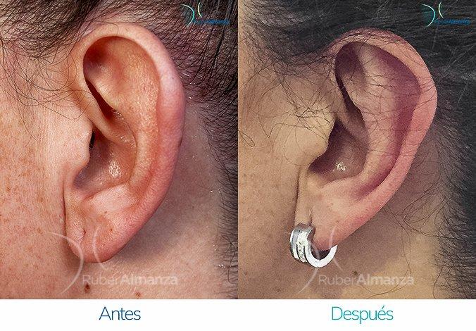 antes-y-despues-otoplastia-ruber-almanza-bogota-colombia-ro-perfill-izquierdo