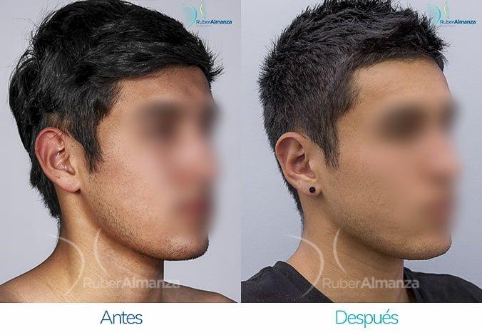 antes-y-despues-otoplastia-ruber-almanza-bogota-colombia-sb-diagonal-derecho