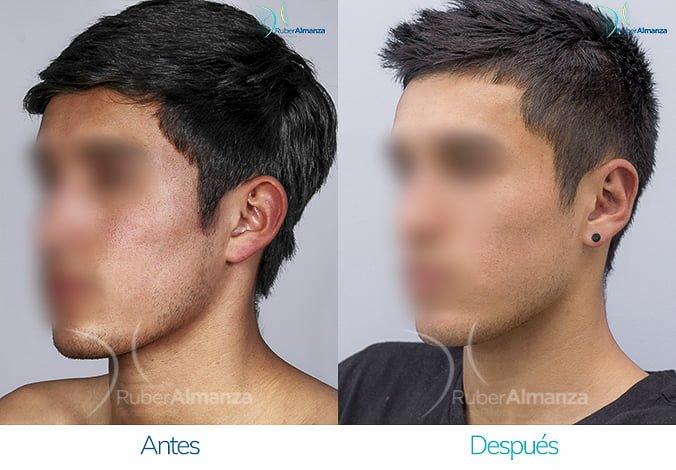 antes-y-despues-otoplastia-ruber-almanza-bogota-colombia-sb-diagonal-izquierdo