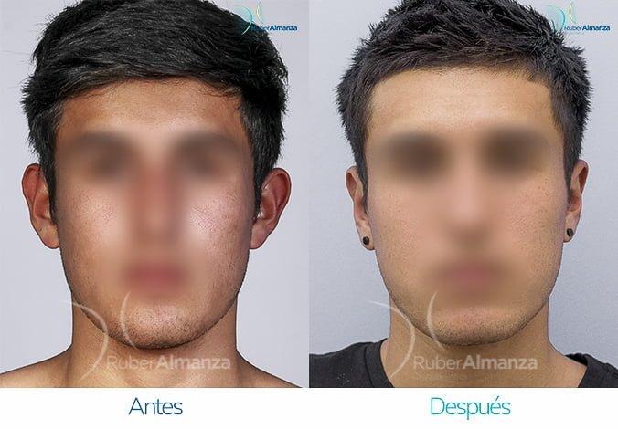 antes-y-despues-otoplastia-ruber-almanza-bogota-colombia-sb-frontal