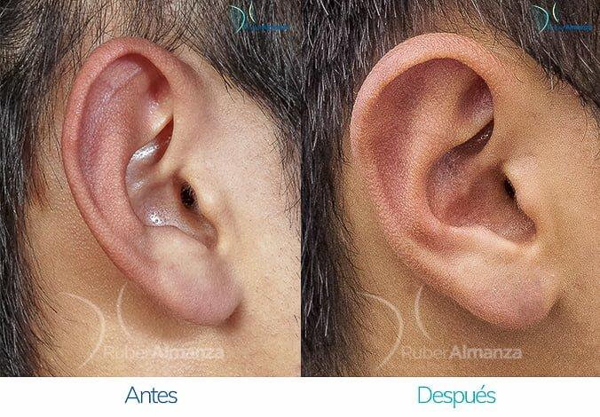 antes-y-despues-otoplastia-ruber-almanza-bogota-colombia-sb-lateral-derecho