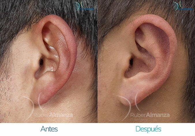 antes-y-despues-otoplastia-ruber-almanza-bogota-colombia-sb-lateral-izquierdo