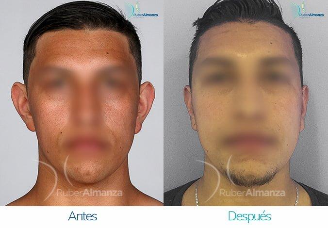 antes-y-despues-otoplastia-ruber-almanza-bogota-colombia-sm-frontal