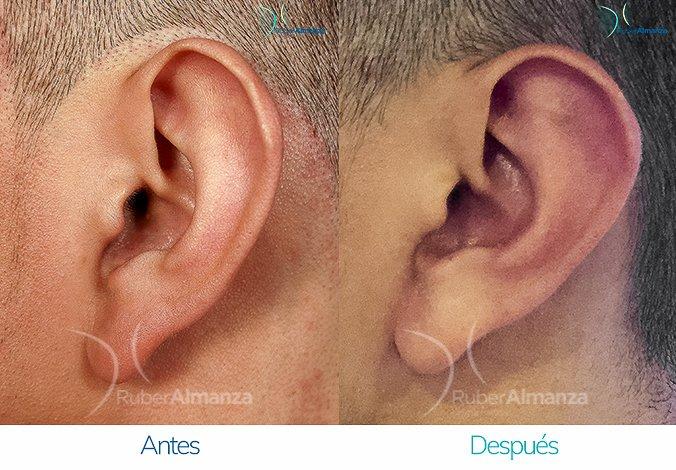 antes-y-despues-otoplastia-ruber-almanza-bogota-colombia-sm-perfill-izquierdo