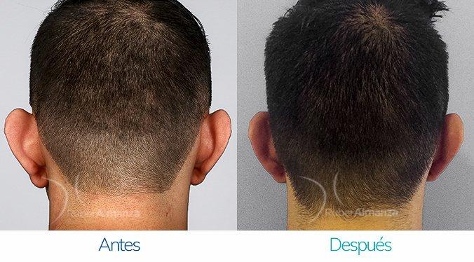 antes-y-despues-otoplastia-ruber-almanza-bogota-colombia-sm-posterior