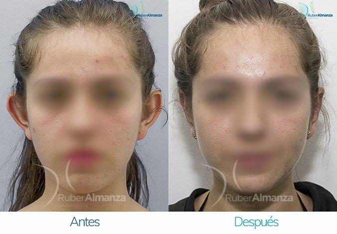 antes-y-despues-otoplastia-ruber-almanza-bogota-colombia-vl-perfill-frontal