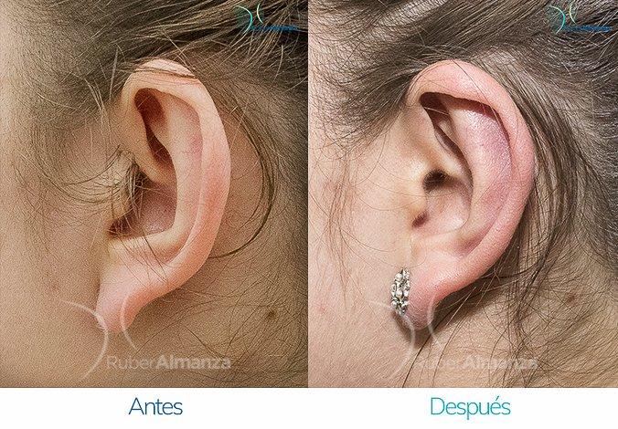 antes-y-despues-otoplastia-ruber-almanza-bogota-colombia-vl-perfill-izquierdo