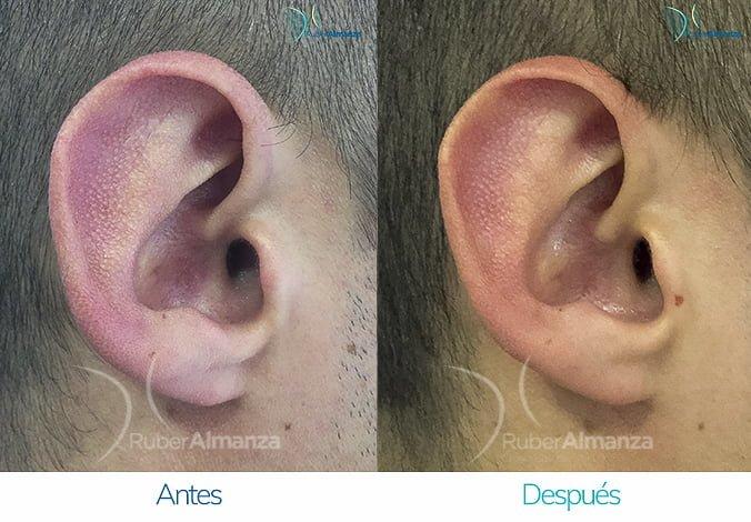 antes-y-despues-otoplastia-ruber-almanza-bogota-colombia-wr-perfill-derecho