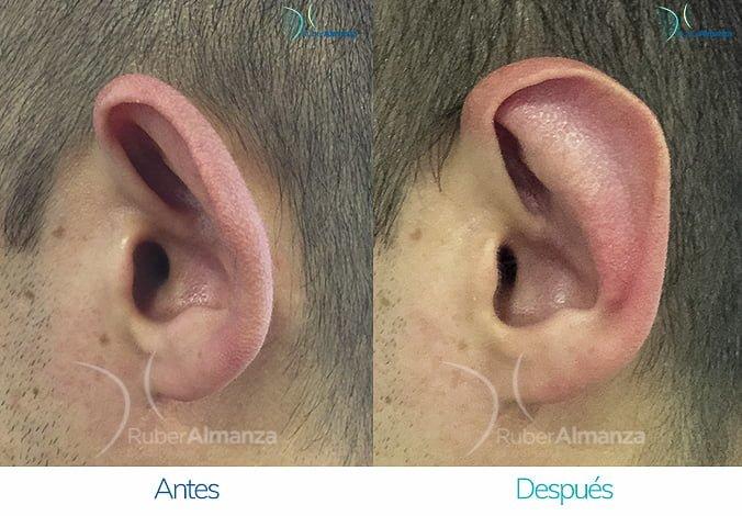 antes-y-despues-otoplastia-ruber-almanza-bogota-colombia-wr-perfill-izquierdo